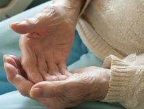 Rheumtoid artretyzm Zdjęcia Stock
