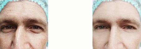 Rhinoplasty άτομο πριν και μετά από τη διόρθωση στοκ φωτογραφία