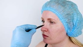 Rhinoplasty: ασθενής στην αποδοχή σε έναν πλαστικό χειρούργο Πρέπει να περάσει από τη μύτη φιλμ μικρού μήκους