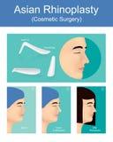 Rhinoplasty пластическая хирургия создает астетическое и лицевой Стоковое Изображение