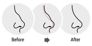 Rhinoplasty illustration stock