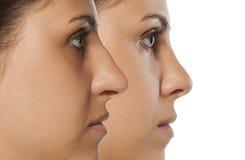 Free Rhinoplasty Stock Images - 94792144