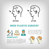 Rhinoplasty Nose Plastic Surgery logos Vector art line icons set Royalty Free Stock Image