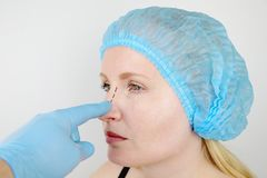 Rhinoplasty: patient on admission to a plastic surgeon. She has to go through the nose stock images