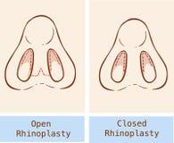 Rhinoplasty technique Stock Photos