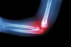 Rhumatisme articulaire, arthrite (coude de s d'enfant de rayon X de film 'avec l'arthrite à coude) (vue de côté, latéraux Gouty) photo libre de droits