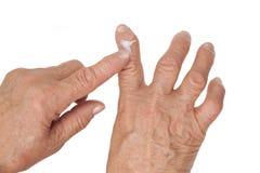 Rhumatisme articulaire des doigts. Utilisant la crème médicale Photos stock