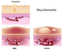 Rhus della dermatite Immagine Stock