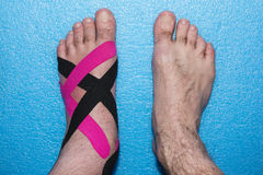 Riabilitazione di applicazioni a piedi dopo la lesione Immagine Stock Libera da Diritti