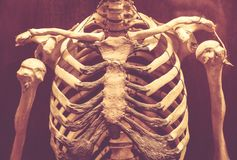 Rib cage in a museum. The thoracic cage to the Museum of the Cathedral, Gozo royalty free stock photos