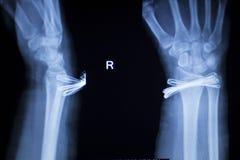 Ricerca dei raggi x dell'impianto del metallo di lesione del polso immagini stock