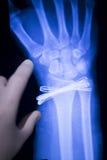 Ricerca dei raggi x dell'impianto del metallo di lesione del polso immagine stock libera da diritti