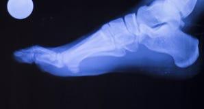 Ricerca dei raggi x della ferita alla caviglia del piede Fotografia Stock Libera da Diritti