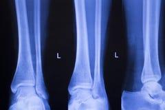 Ricerca dei raggi x della ferita alla caviglia del piede Fotografia Stock