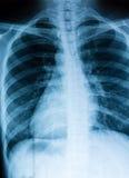 Ricerca dell'esame radiografico del torace fotografie stock libere da diritti