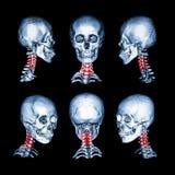 Ricerca di CT ed immagine 3D del cranio e del collo Usi questa immagine per la spondilosi cervicale, la spondilolistesi, la spond Fotografia Stock Libera da Diritti