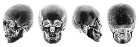 ricerca di 3D CT del cranio umano Vista multipla Stile invertito di colore Immagine Stock