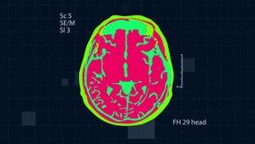 Ricerca di MRT del cervello Fondo medico completo di HD Ciclaggio senza cuciture video d archivio