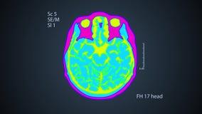 Ricerca di MRT del cervello Una vista sullo schermo fondo variopinto medico 4k video d archivio
