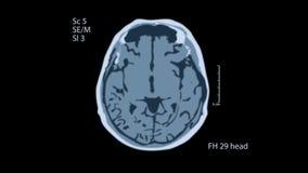 Ricerca di MRT del cervello Una vista sullo schermo nero fondo medico 4k archivi video
