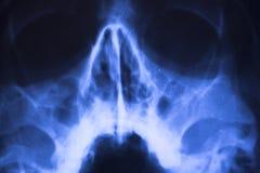 Ricerca medica del fronte dei raggi x Fotografia Stock