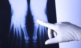 Ricerca medica del piede dei raggi x Fotografia Stock Libera da Diritti