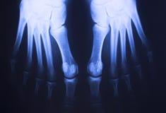 Ricerca medica del piede dei raggi x Immagine Stock Libera da Diritti
