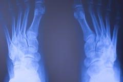 Ricerca medica del piede dei raggi x Immagini Stock