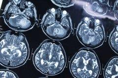 Ricerca nella medicina Ricerca di CT del paziente Immagini Stock