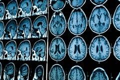 Ricerca nella medicina Ricerca di CT del paziente Fotografie Stock