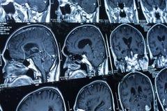 Ricerca nella medicina Ricerca di CT del paziente Immagini Stock Libere da Diritti