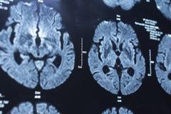 Ricerca nella medicina Ricerca di CT del paziente Fotografia Stock Libera da Diritti