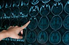 Ricerca nella medicina Ricerca di CT del paziente Fotografia Stock