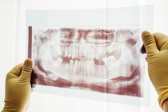 Ricerca panoramica del primo piano dentario di mutazione Immagini Stock Libere da Diritti