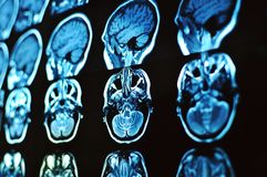 Ricerca a risonanza magnetica di immagine del cervello Film di RMI di un cranio e di un cervello umani Fondo di neurologia immagini stock libere da diritti