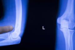 Ricerca unita dei raggi x del gomito del tennista Fotografia Stock Libera da Diritti