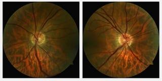 Ricerche destre e sinistre dell'occhio Immagini Stock
