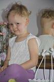 Ricrescita dei capelli in alopecia areata in un bambino Fotografia Stock