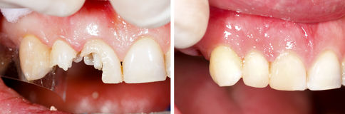 Riempimento Destructed dei denti Fotografie Stock Libere da Diritti