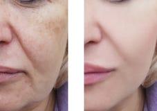Rigenerazione facciale di differenza di rimozione delle grinze della donna prima e dopo le procedure di correzione fotografia stock