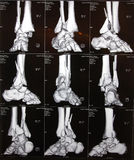 Right ankle CT Royalty Free Stock Photo