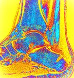 Right ankle after surgery haglund deformity mri. Colorful magnetic resonance imaging of orthopedic pathology.This is right ankle after surgery of Haglunds royalty free stock image