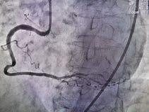 Right coronary artery royalty free stock photo