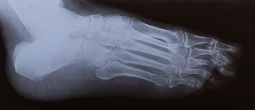 Right foot ankle Xray. Royalty Free Stock Photos