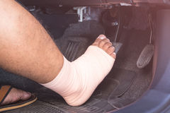 Right foot with bandage cloth step on the brakes in the modern c Stock Images