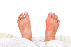 Right foot with painful swollen gout inflammation resting on bed Royalty Free Stock Images