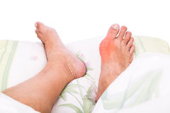 Right foot with painful swollen gout inflammation resting on bed Stock Image