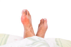 Right foot with painful swollen gout inflammation resting on bed royalty free stock photography