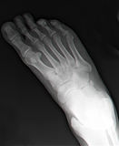 Right foot x-ray#2. Top view of right foot thru X-ray Royalty Free Stock Photo