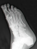 Right foot x-ray. Top view of right foot in X-ray Royalty Free Stock Image